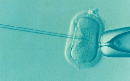 A microscope image of in vitro fertilisation underway