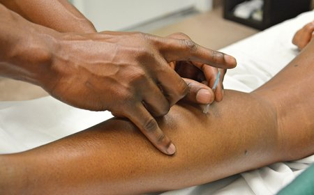 A modern acupuncture treatment