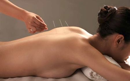 An acupuncture treatment